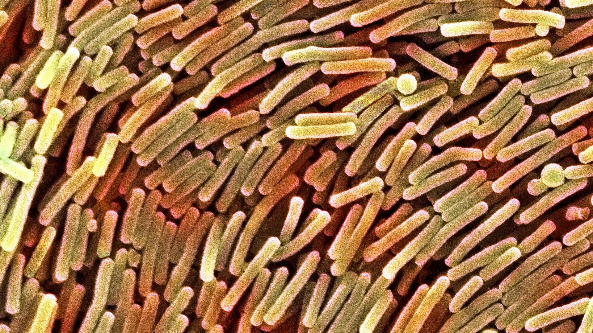 Clostridium difficile Is More Common Than You Think