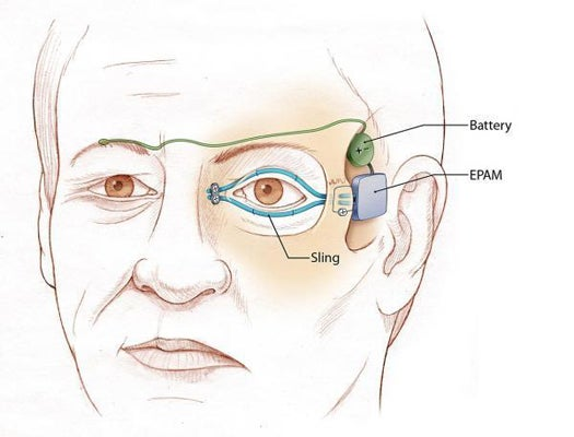 First Artificial Muscles Used to Control Eyelids