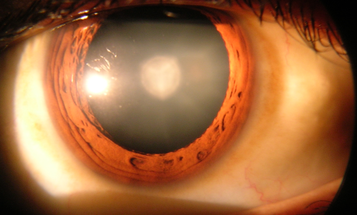 Stem Cells Can Regenerate The Lens In Your Eye