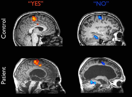 Brain Scan Shows Vegetative Patient Responding To Yes-or-No Questions