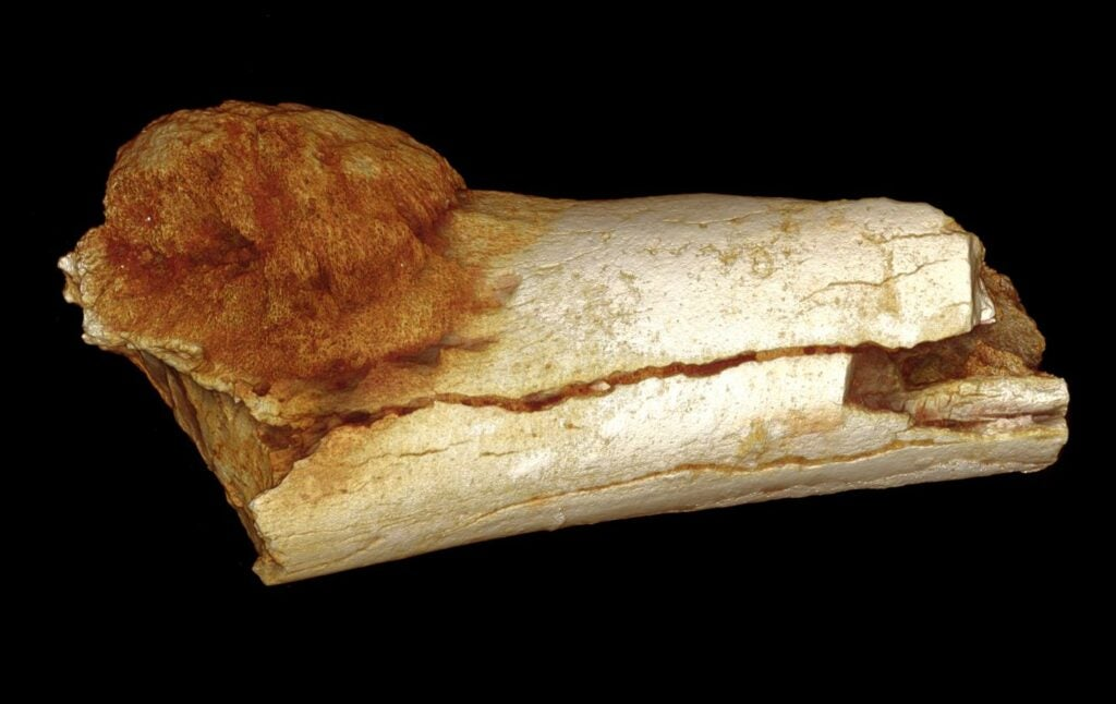 This foot bone dates back around 1.7 million years and contains a large, malignant tumor.