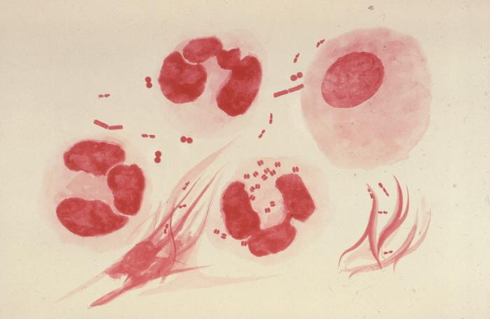 Fragment of Human DNA Found in Genome of Gonorrhea Bacteria