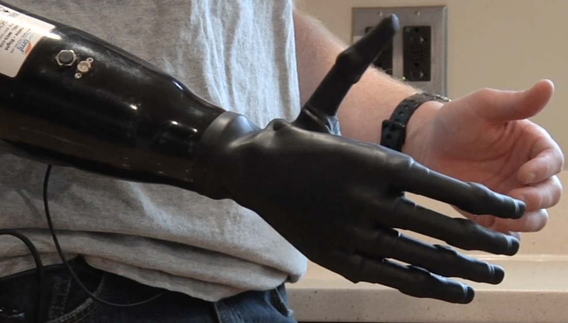 Video:  A Marine With A Prosthetic Hand Controlled By His Own Muscles