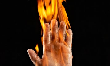 Gray Matter: In Which I Set Myself On Fire