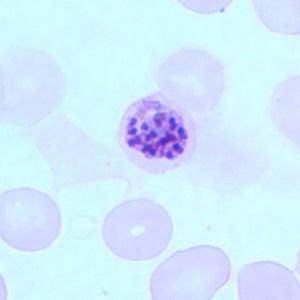 New Single-Dose Treatment Cures Malaria In Mice