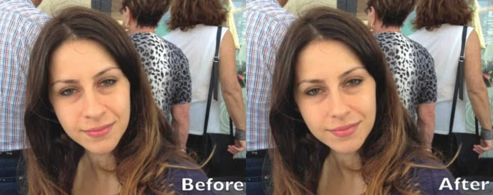 New App Gives You An Automatic Nosejob