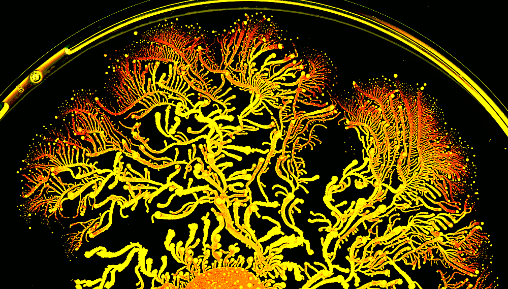 This Bacterium Carries Microbial Luggage