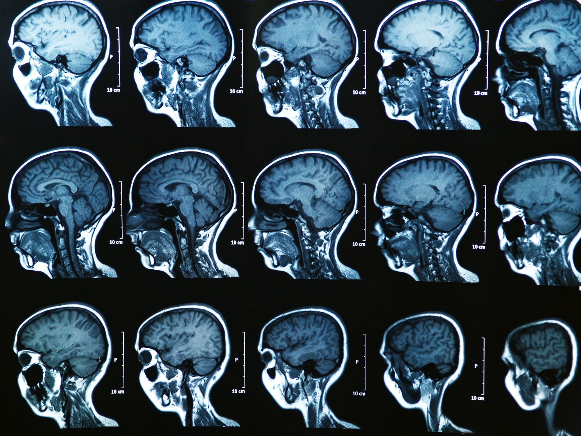 Concussions make lasting changes to the brain, even after you feel fine