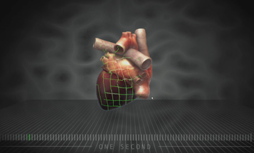 How Computer Modeling Lets Doctors Predict Heart Attacks Before They Happen