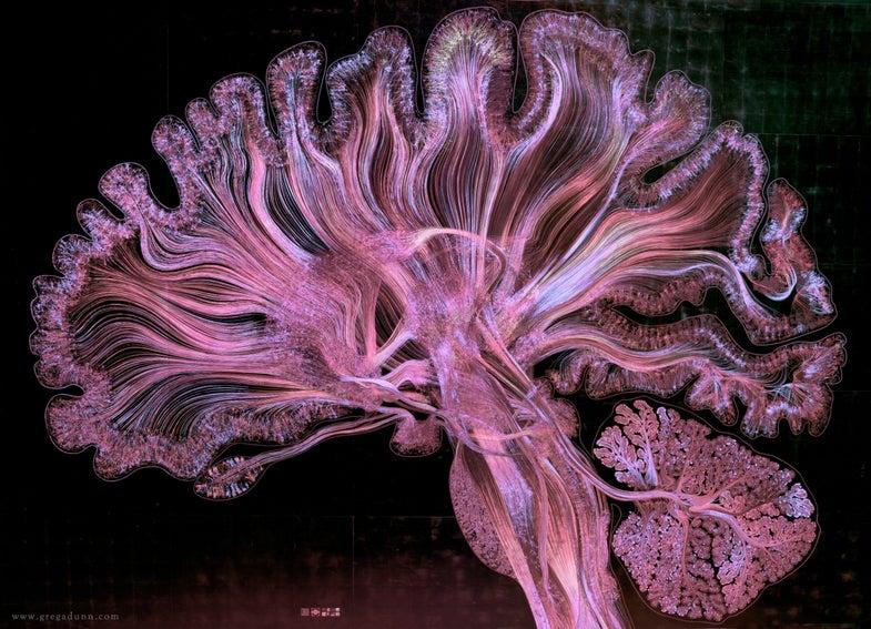 Human brain illustration   Vizzies winner
