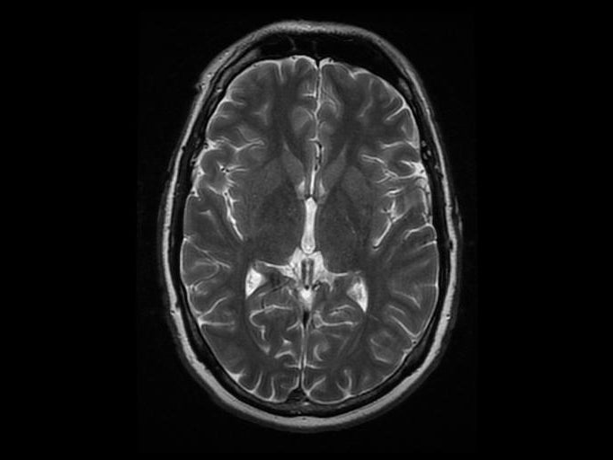 This tiny bit of the brain could offer clues about addiction