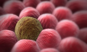 We're getting better at screening for cancer, and that could be a problem