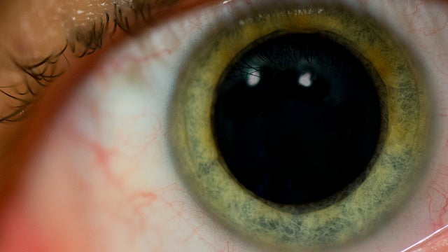 What Caused This Baffling Epidemic Of Hallucinations?