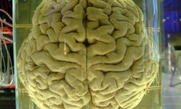 To Track Mental Illness, Researchers Are Taking the DNA Of Century-Old Brains In Jars