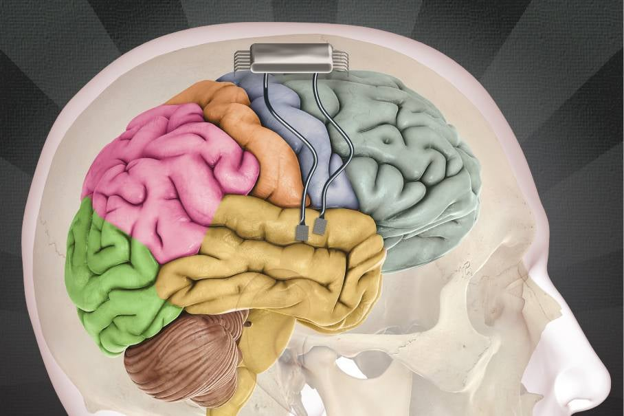 Do We Need A 'Magna Cortica' For Brain Rights?