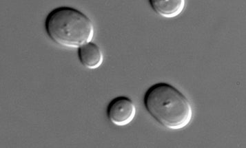 Cyborg Yeast's Genes Are Controlled By a Computer