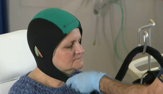 Wearing Super-Cold Hat During Chemo May Prevent Hair Loss