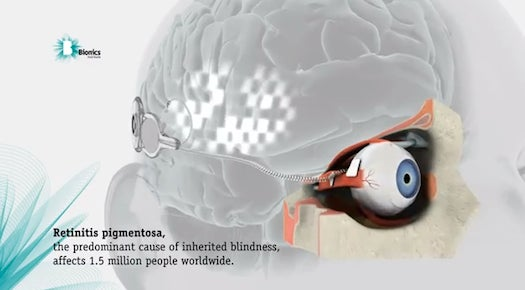 In World First, Scientists Surgically Implant a Working Bionic Eye In a Blind Patient