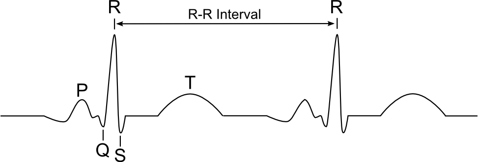 ekg r-r interval