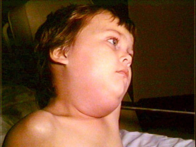 The Problem Of The Parotid Paramyxovirus (A.K.A. Mumps)