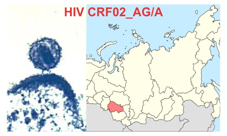 The Startling Surge of the Siberian HIV Strain