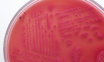 With a Little Help, E. Coli Turns Biomass Directly to Biodiesel