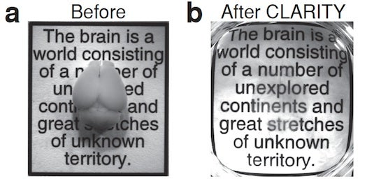 photos of a mouse brain before and after CLARITY treatment