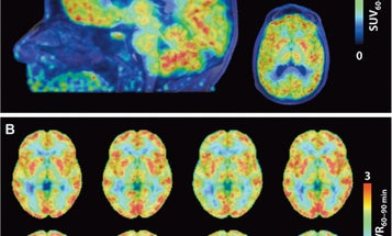 A New Type Of Brain Scan Shows Where Genes Are Being Turned Off