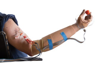 Sense Of Touch Recreated For Amputees In Their Prosthetics
