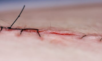 Smart Stitches Send Data As They Heal Wounds