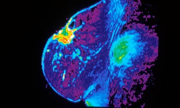 The Confounding Commandments Of Cancer Screening