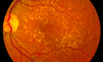 In Experimental Treatment, Stem Cells Could Restore Woman's Sight