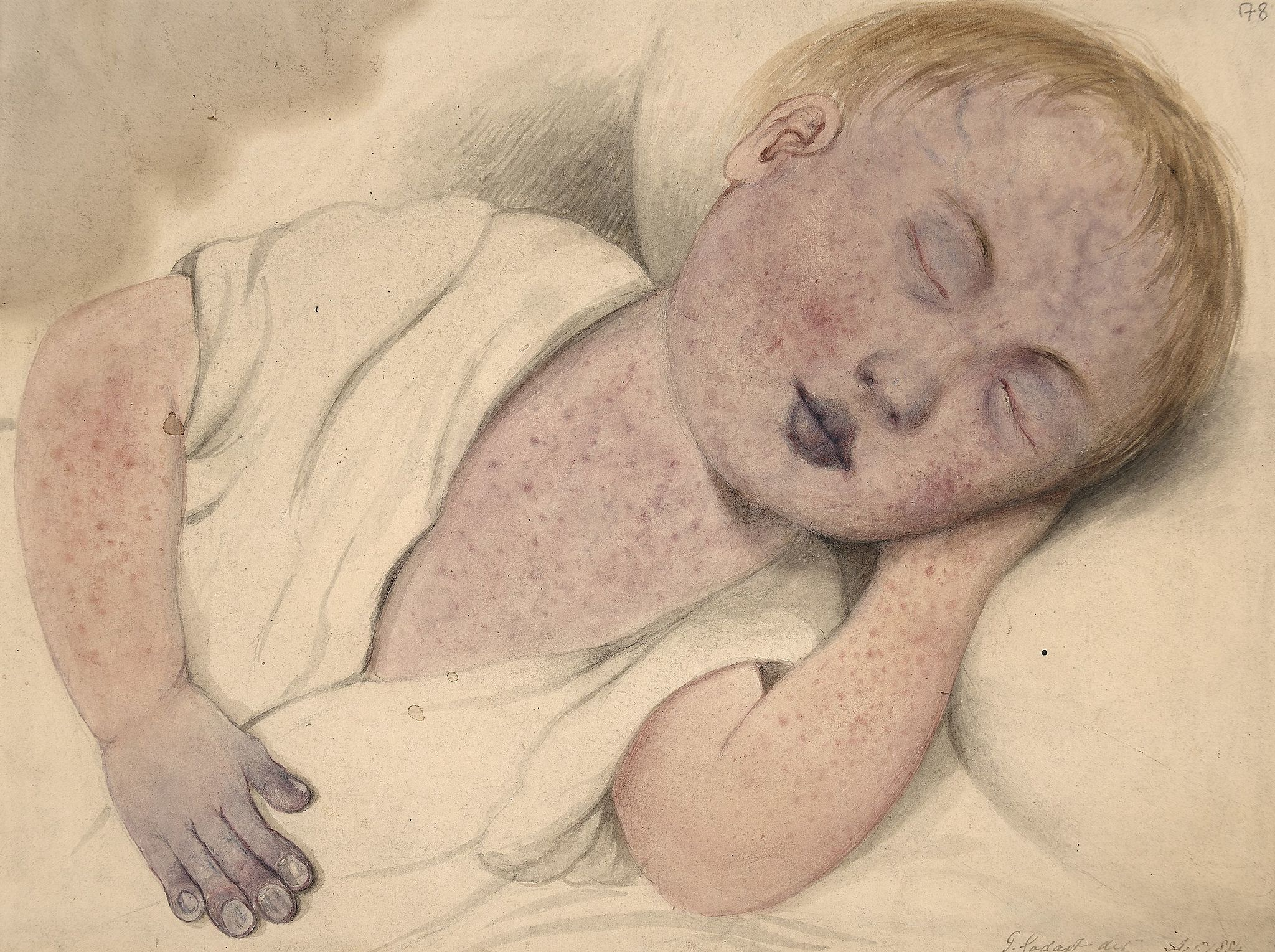 Why are the measles coming back?