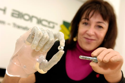 Partial-Hand Amputees Get Better Bionic Fingers