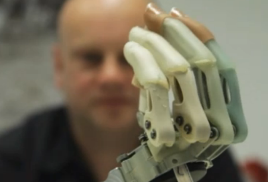 Patient Elects to Have Hand Amputated to Make Way for a Bionic One