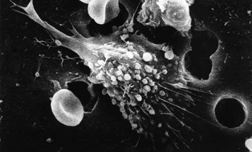 Why Are Scientists SO Excited About This New Cancer Drug?