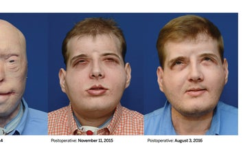 One Year Later, Face Transplant Recipient Just A Normal Guy