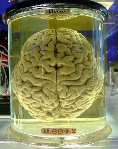 Scientists to Football Players: Give Us Your Brains