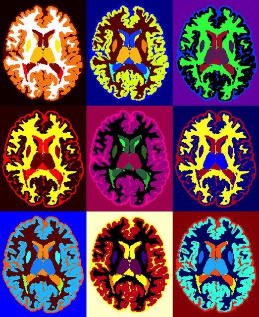MRI Scans of brain