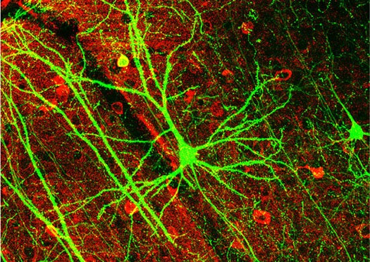New Optogenetic Neural Implants Use Precise Beams of Light to Manipulate The Brain