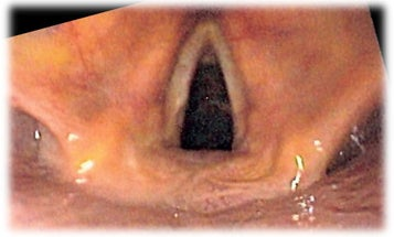 Researchers Make Vocal Cords In The Lab