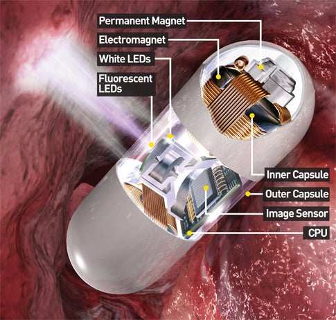 How It Works: The Endoscope Camera in a Pill