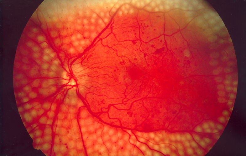 Google is using its deep learning tech to diagnose disease