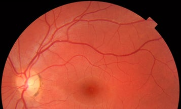 Gene Therapy For Congenital Blindness Has Long-Lasting Effect