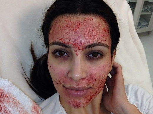 Why Are Celebrities Getting Vampire Facials?