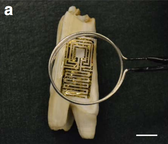 Tattooing Teeth With Graphene Could Warn of Bacteria and Dental Decay