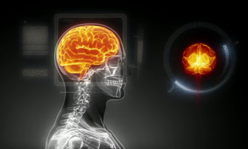 European Researchers Win $1.3 Billion To Simulate The Human Brain