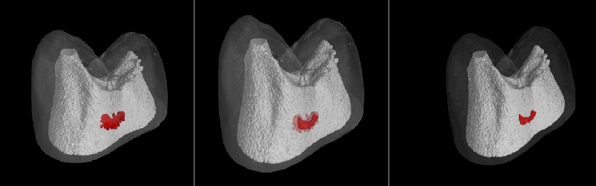 Electrical Currents Could Heal Cavities, Replace Drilling