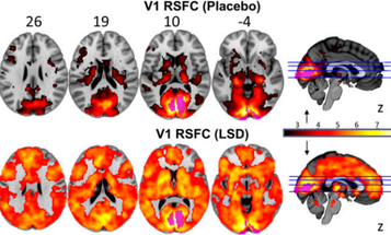 New Views Of The Hallucinating Brain