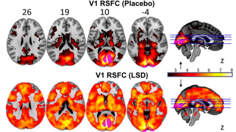 Connectivity of a brain on LSD
